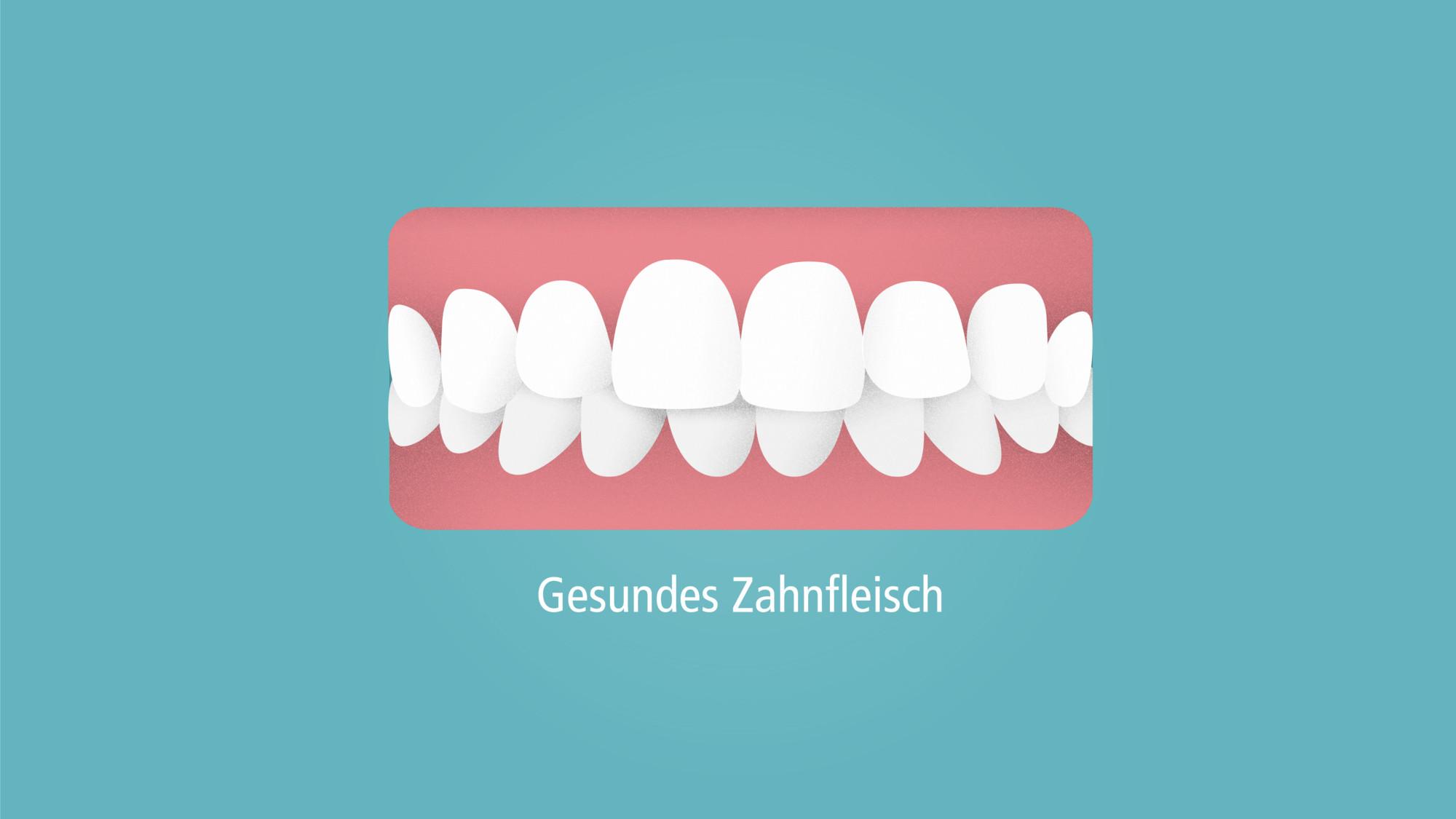 rs2853_parodontitis-gesundes-zahnfleisch-001.jpg-lpr