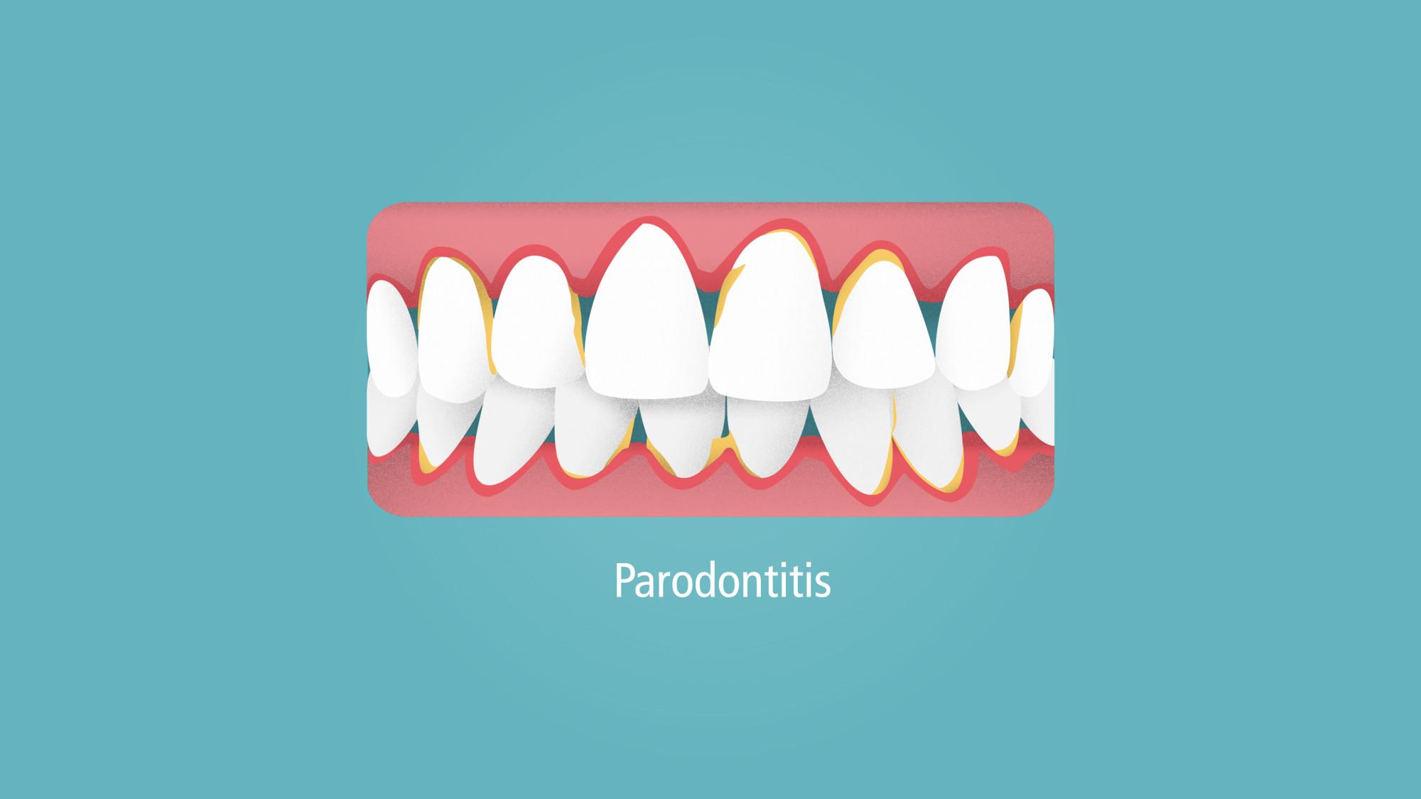 rs2856_parodontitis-003-lpr